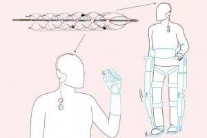 Elektroda w żyle odbiera sygnały z mózgu